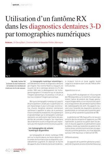 Utilisation d'un fantôme RX dans les diagnostics dentaires 3-D par ...