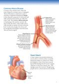 Living with Angina - Veterans Health Library - Page 5