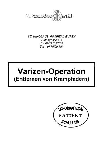 Varizen-Operation