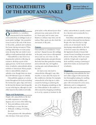 OSTEOARTHRITIS OF THE FOOT AND ANKLE