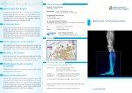 Treatment of Varicose Veins - nuhcs