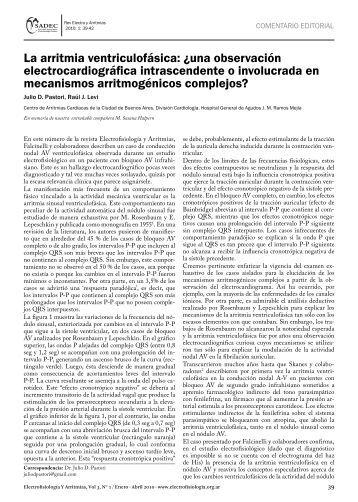La arritmia ventriculofásica - electrofisiologia.org.ar