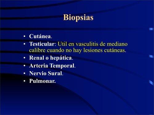 Vasculitis de Grandes y Medianos Vasos - eTableros