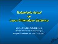 Lupus Eritematoso Sistémico. Parte 2 - eTableros