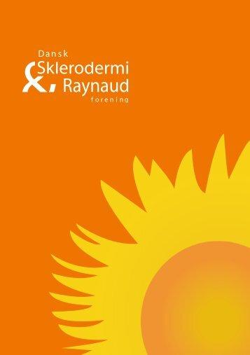 pdf - Dansk Sklerodermi & Raynaud Forening