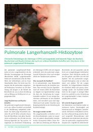 Pulmonale Langerhanszell-Histiozytose (161Kb) - CHUV
