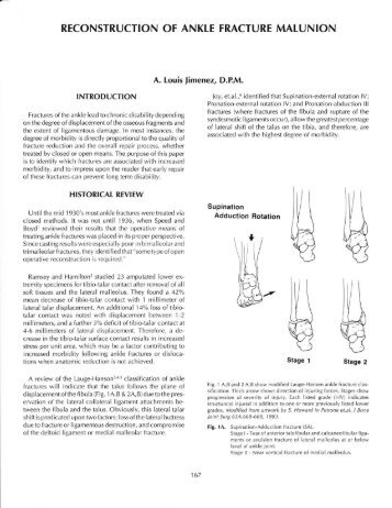 reconstruction of ankle fracture malunion - The Podiatry Institute