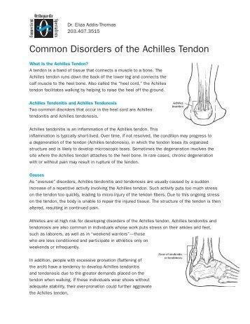 Len Fürth capsulitis of the second toe ct ortho com