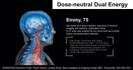 Dose-neutral Dual Energy - Siemens Healthcare
