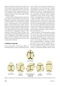 Yksinkertaiset kraniosynostoosit - Page 2