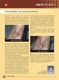 Ulcerative Colitis - Dr Batras - Page 4