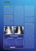 Gerätetauchen und Lunge - Seite 2