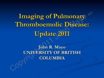 Imaging of Pulmonary Thromboemolic Disease ... - Bone Radiology