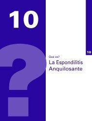 ¿Qué es la Espondilitis Anquilosante?