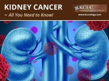 Cancer of the Kidney - What You Need to Know!