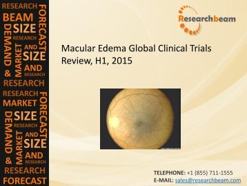 Macular Edema Global Clinical Trials Review, H1, 2015: Market Growth, Key Drugs, Analysis