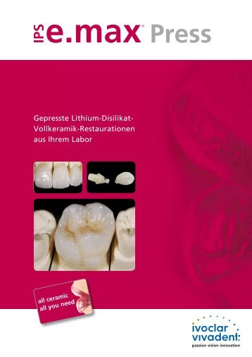 IPS e.max Press - Info Labor zum Zahnarzt - Ivoclar Vivadent