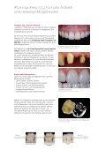 IPS e.max Press - Info Labor zum Zahnarzt - Ivoclar Vivadent - Seite 2