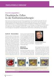 Dendritische Zellen in der Krebsimmuntherapie - ACTIVARTIS ...