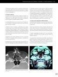 traumatologia-maxilofacial-10 - Page 3