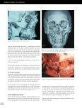 traumatologia-maxilofacial-10 - Page 6