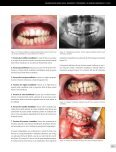 traumatologia-maxilofacial-10 - Page 7