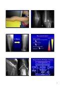 Schulter- gürtel Schulter- gürtel - Seite 2