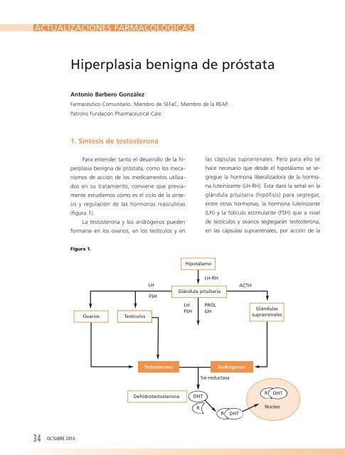 agrandamiento de la próstata agrandado del líquido de la vejiga alrededor del escroto