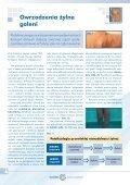 Leczenie owrzodzeń kończyn dolnych - Spondylus - Page 4