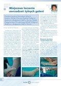 Leczenie owrzodzeń kończyn dolnych - Spondylus - Page 6