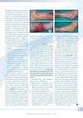 Leczenie owrzodzeń kończyn dolnych - Spondylus - Page 7