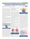 Motocicleta mai sigură Schimbări climatice - ingineria-automobilului.ro - Page 5