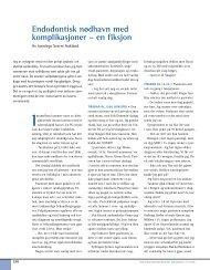 Endodontisk nødhavn med komplikasjoner – en fiksjon - Den norske ...