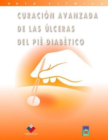 Curación Avanzada de las Ulceras del Pie Diabético - Servicio de ...