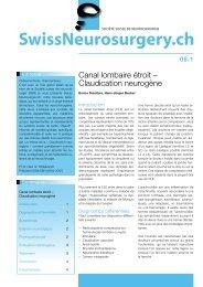 Claudication neurogène - Société suisse de rhumatologie