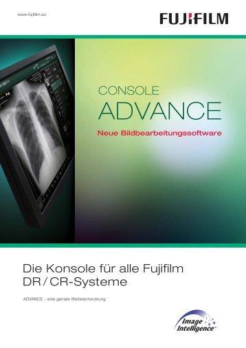 Advance Konsole - Lumedi