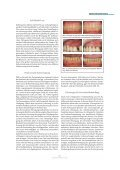 Biofilm-Management - Seite 4