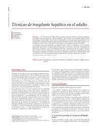 Técnicas de trasplante hepático en el adulto - cinco