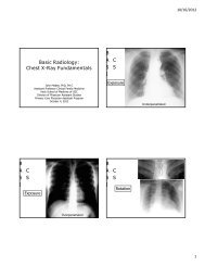 Basic Radiology: Chest X-Ray Fundamentals BASICSBASICSBASICS
