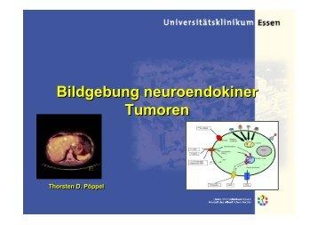 Neuroendokrine Tumoren - RWGN