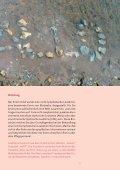 Nicht lymphatische Leukämie - Österreichische Kinder-Krebs-Hilfe - Seite 3