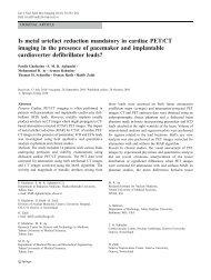Segmentation of artifacts and anatomy in CT metal artifact