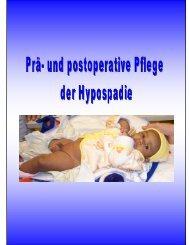 Prä- und postoperative Pflege der Hypospadie. Liedl Sabine - Salk
