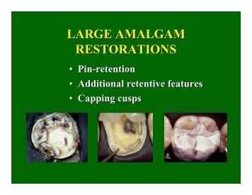 Pin Placement for Amalgam