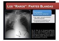 """LOS """"RAROS"""": PARTES BLANDAS"""