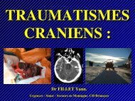 Traumatisme cranien, Dr Fillet - Association Nationale des Médecins ...