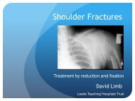 Shoulder Fractures - ShoulderDoc.co.uk