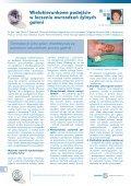 Leczenie owrzodzeń żylnych goleni cz.2 - Spondylus - Page 4