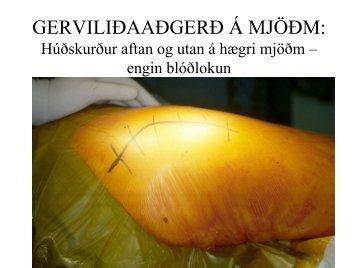 aðgerð á mjöðm