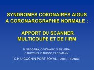 syndromes coronaires aigus a coronarographie normale : apport